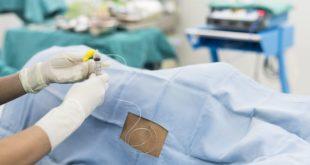 Anestesia epidural parto
